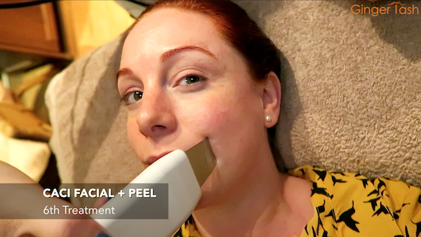 facial peel chester